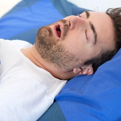 Relatively young man in white shirt snoring in bed